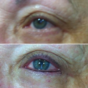 micropugmentación ojos raya Ella's Zaragoza